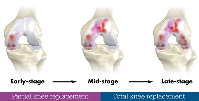 knee joint degradation