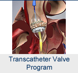 Transcatheter Valve Program