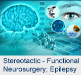 Stereotactic and Functional Neurosurgery; Epilepsy Surgery
