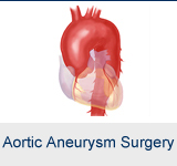 Aortic Aneurysm Surgery