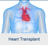 Transplant center learn more about our services heart transplant kidney transplant m4hsunfo